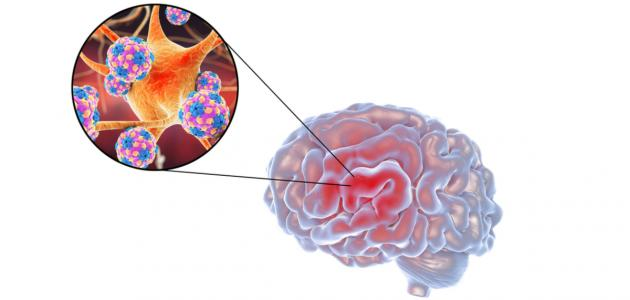 التهاب الهربس الدماغي