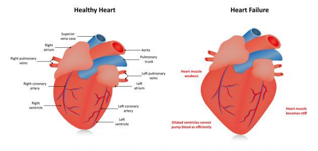 التهاب جدار القلب