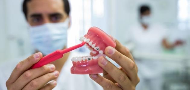 آثار تسوس الأسنان على الصحة