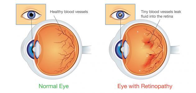 اعتلال شبكية العين
