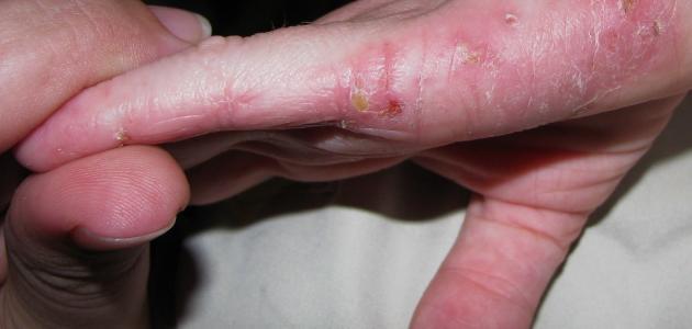 ما هي أنواع حساسية الجلد