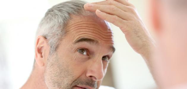 كيفية إنبات الشعر المتساقط للرجال