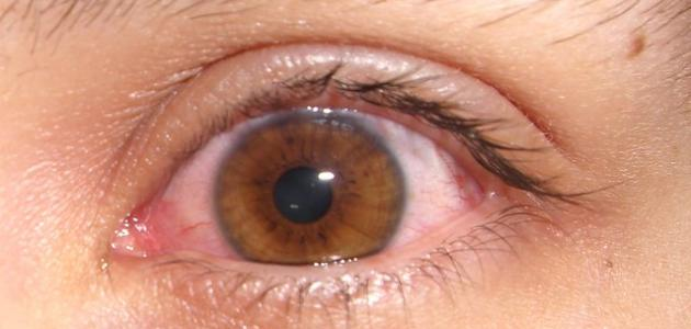 لماذا تحمر العين