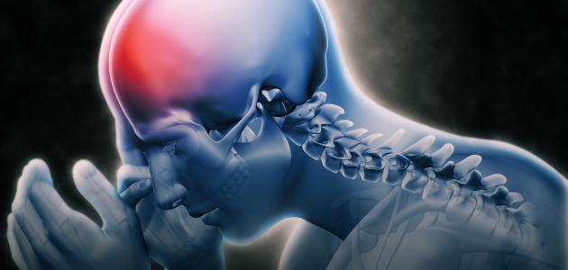 أعراض التهاب شرايين الدماغ