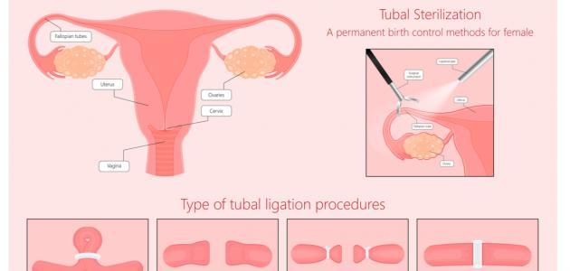 كيفية ربط الرحم لمنع الحمل