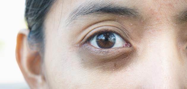 ما علاج الهالات السوداء تحت العين