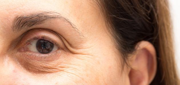 ما علاج تجاعيد تحت العين