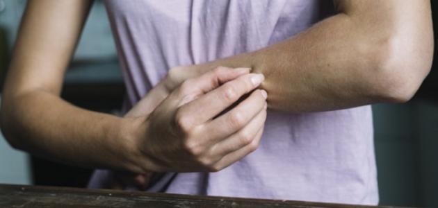 ما هو التهاب الجلد الدهني
