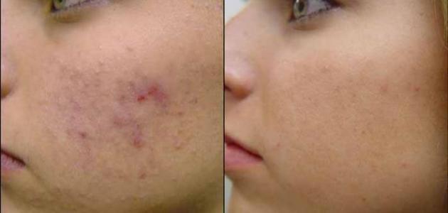 كيف تزيل آثار الحبوب من الوجه