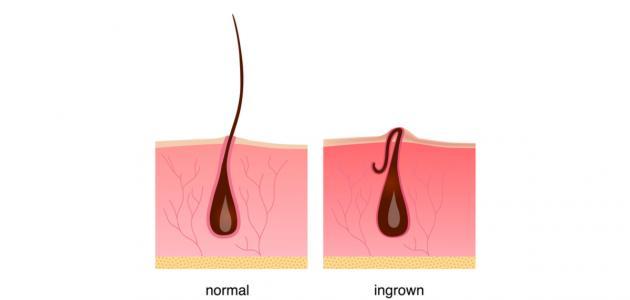 ما علاج الشعر تحت الجلد