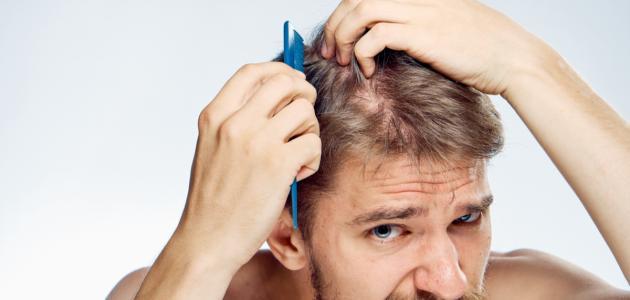ما سبب تساقط الشعر للرجال