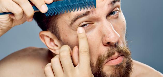 ما سبب تساقط شعر الحواجب