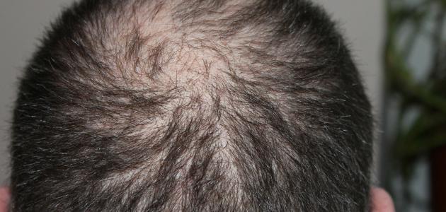 ما سبب تساقط الشعر عند الرجال
