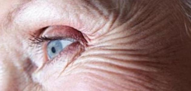 كيف أزيل التجاعيد حول العين