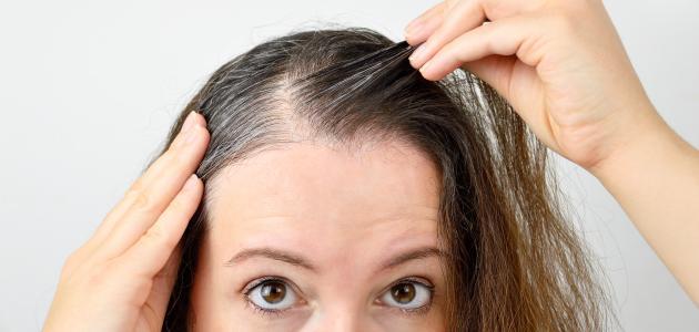 ما سبب تساقط الشعر من الأمام
