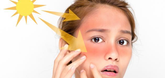 كيفية علاج الوجه من حروق الشمس