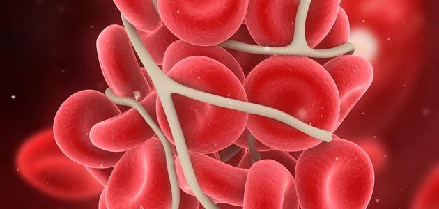 ما أسباب سرطان الدم