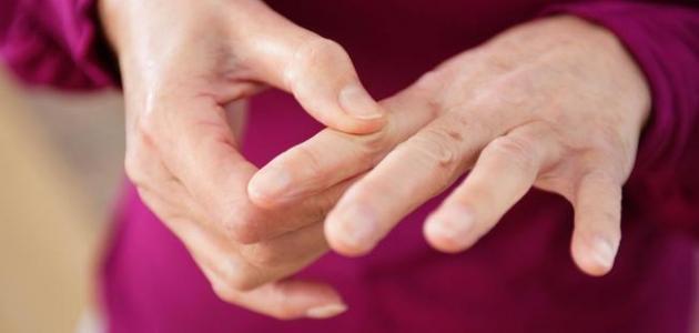 علاج الروماتيزم
