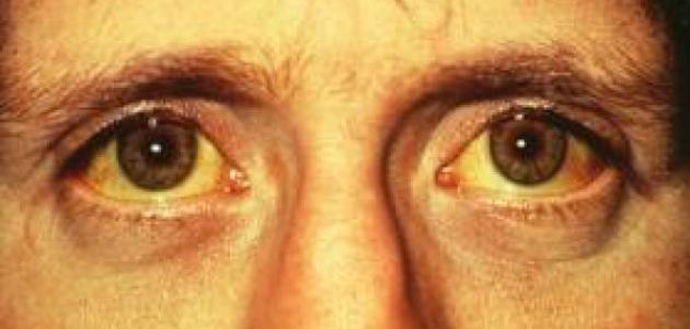 الكبد واصفرار العين