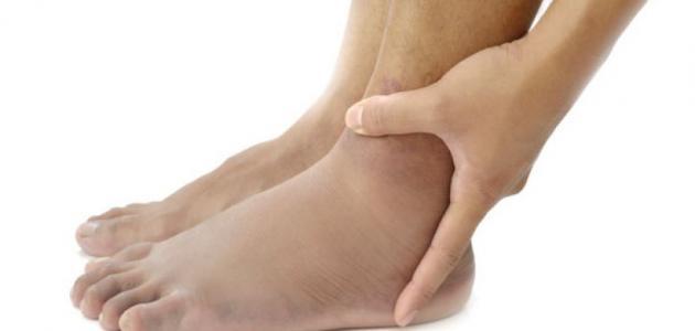 ما أسباب تورم الساقين