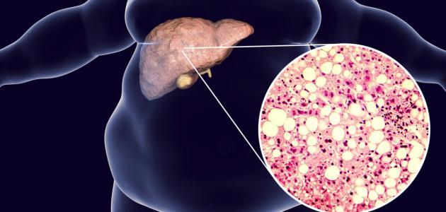 ما أسباب الدهون على الكبد