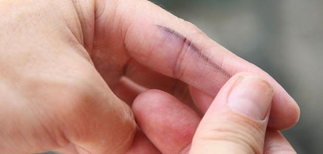 كيف أزيل الحبر عن اليد