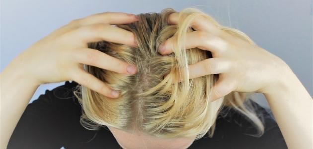 كيف تعالج قشرة الرأس
