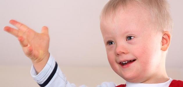 """الاطفال ذوي الاحتياجات الخاصة ط§ظ""""ط§%D"""