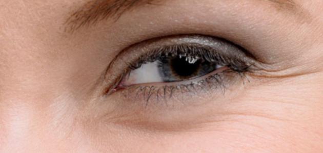 كيف تزيل التجاعيد تحت العين