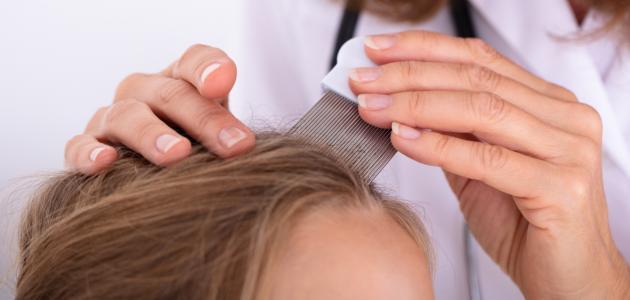 كيف أتخلص من بيض القمل في الشعر