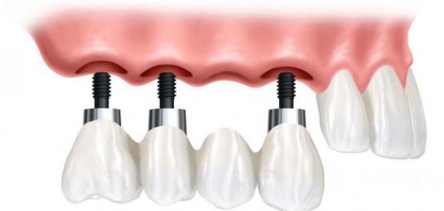 كيف تتم زراعة الأسنان