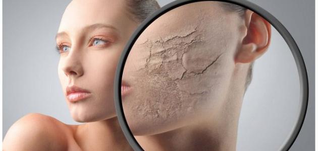 ما علاج جفاف الوجه