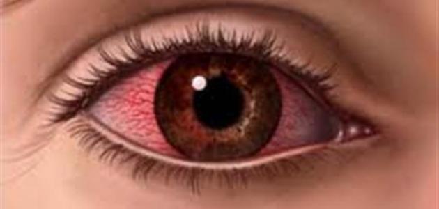 ما علاج احمرار العين