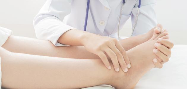 ما علاج تورم القدمين