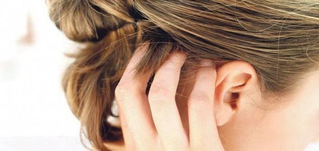 ما علاج حساسية فروة الرأس