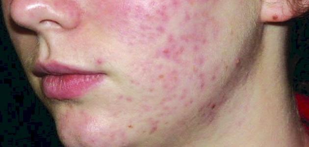ما علاج حبوب الوجه