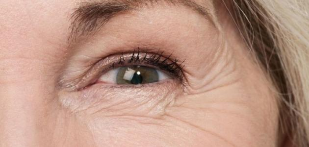 كيفية إزالة التجاعيد تحت العين
