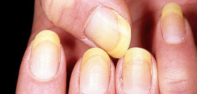 ما هو سبب إصفرار الأظافر