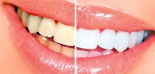 ما هو سبب اصفرار الأسنان