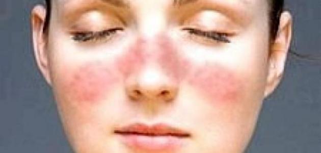 422581576 ما علاج قشرة الوجه - موضوع