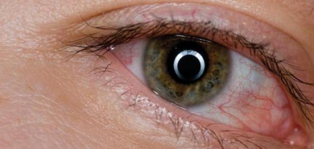 ما علاج تورم العين
