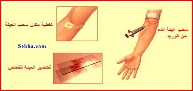 ما هو تحليل الدم الشامل
