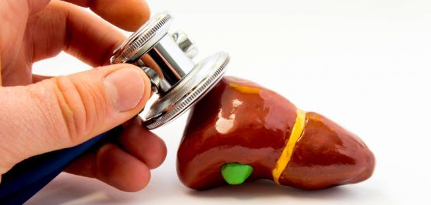ما علاج ارتفاع إنزيمات الكبد