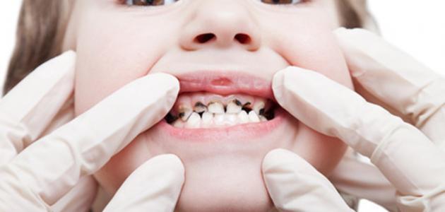 ما هو سبب تسوس الأسنان موضوع
