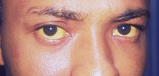 ما هو سبب اصفرار بياض العين