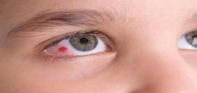 ما هو ظفر العين
