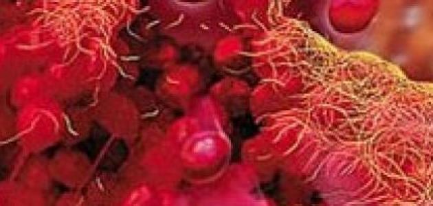 ba5142f9a ما علاج نقص الصفائح الدموية - موضوع