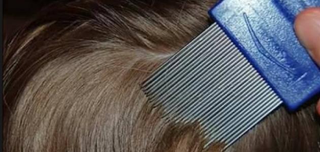 كيفية علاج قمل الرأس