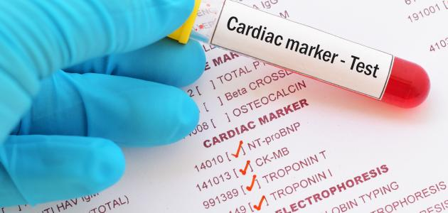 ما هو تحليل إنزيمات القلب