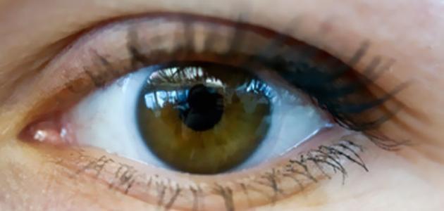 ما هي الأمراض التي تصيب العين